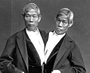 อินจัน แฝดสยามบันลือโลก